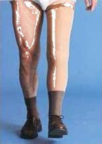 Proteza pentru dezarticulatia de genunchi, modulara de la Handilug Srl